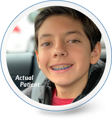 delurgio blom orthodontics braces for children