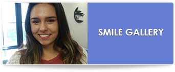 delurgio blom orthodontics smile gallery