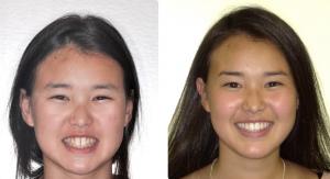 delurgio orthodontics smile assessment