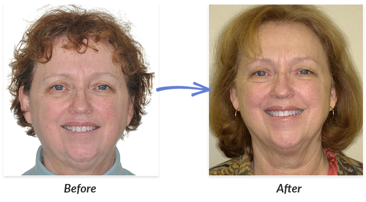 Before and after adult braces variants