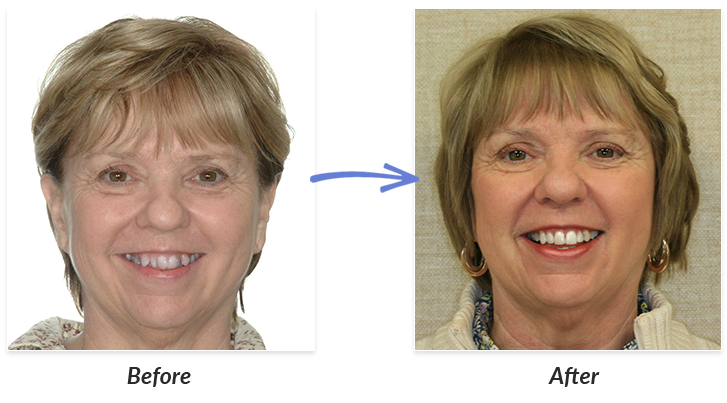 Are before and after adult braces