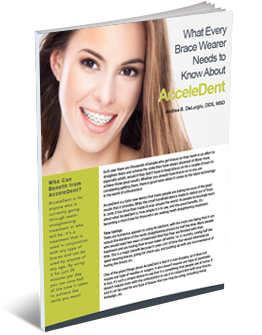 what every brace wearer should know about acceledent